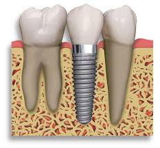 Implant Supported Crown & Bridge Dentist