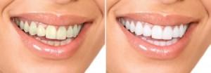 teeth whitening north canton