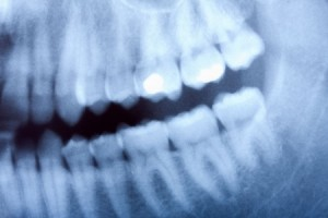 X-Ray (Radiographic) Regimen