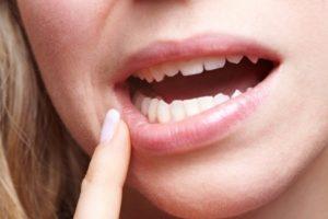 How to Reverse Receding Gums